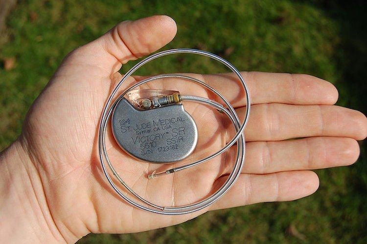 st_jude_medical_pacemaker